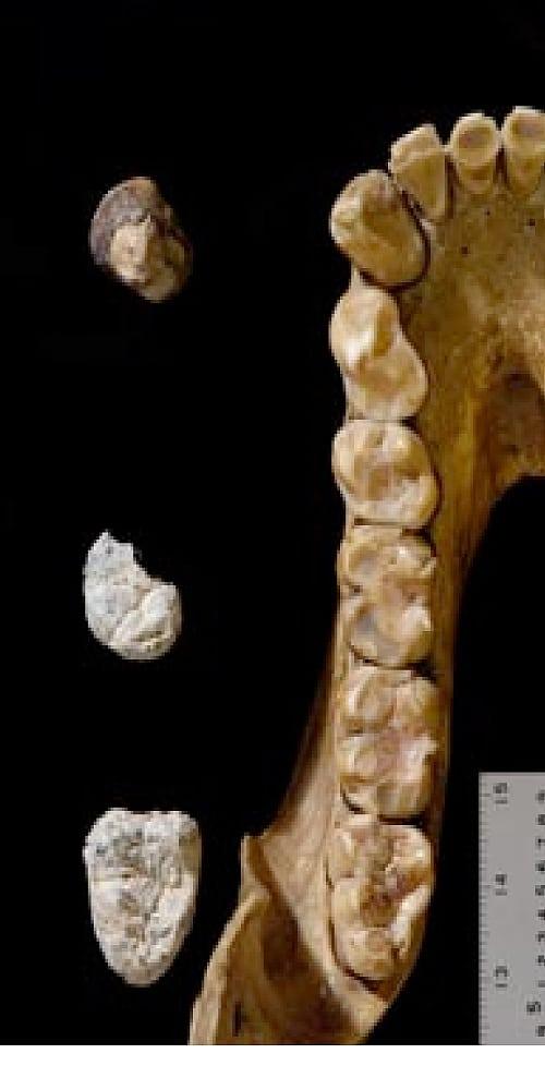 Paläontologie: Fossilfund rückt Trennung von Mensch und Affe weiter ...