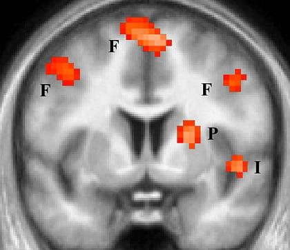 Hirnforschung: Hass und Liebe beeinflussen ähnliche Hirnregionen ...