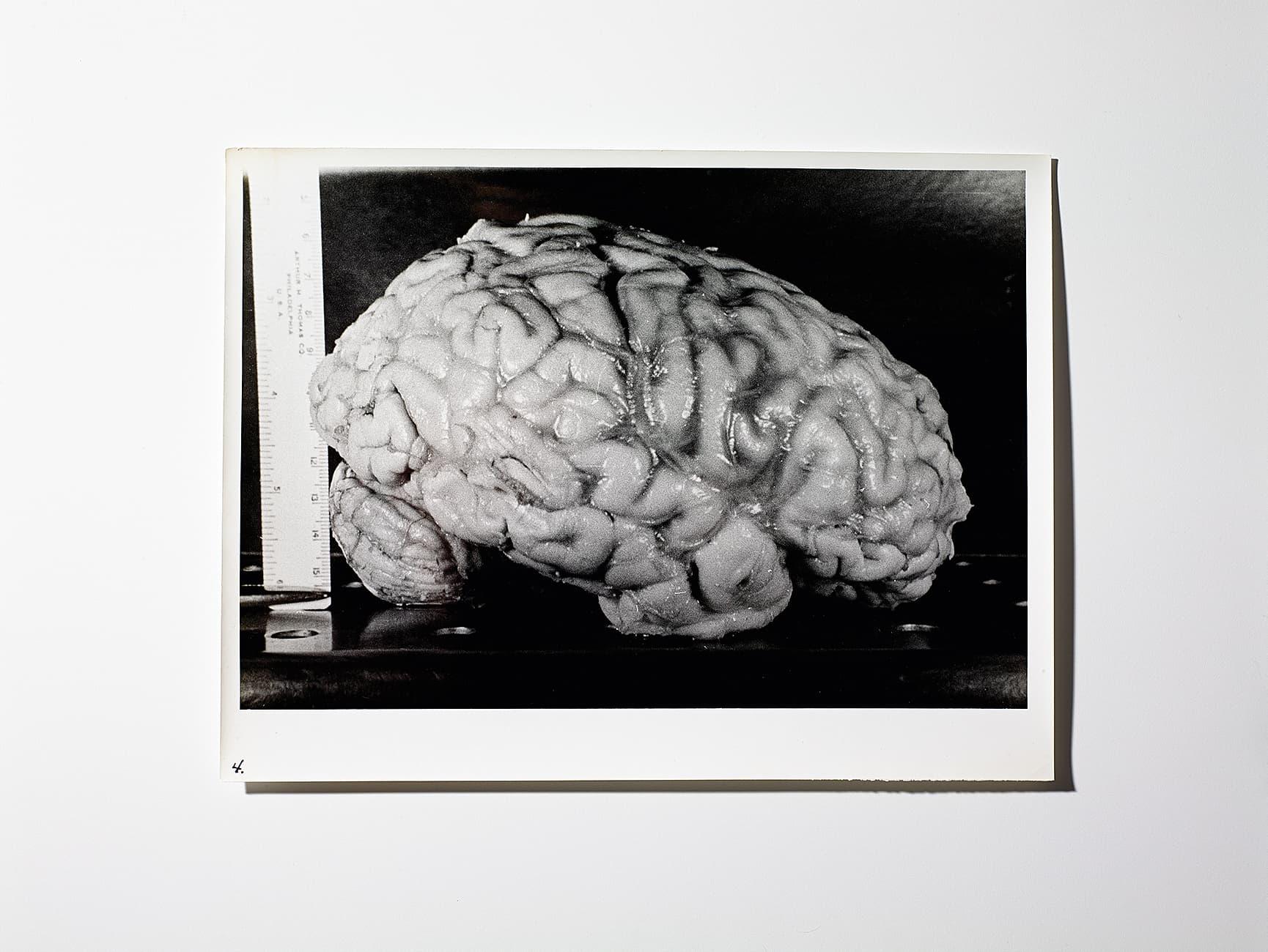 Großartig Anatomie Des Gehirns Und Seiner Funktion Bilder - Anatomie ...
