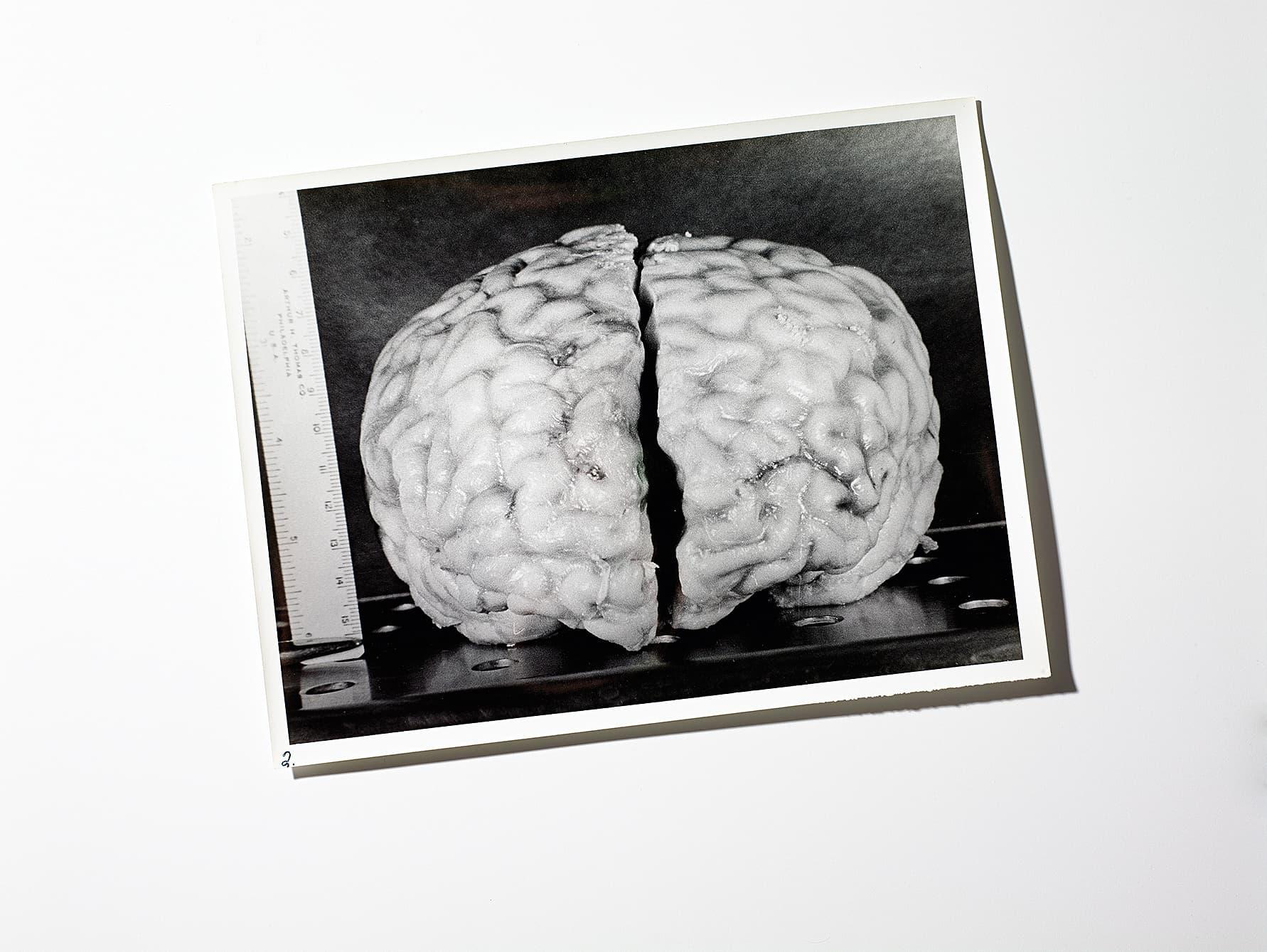 Neurowissenschaft: Einsteins Gehirn - Spektrum der Wissenschaft