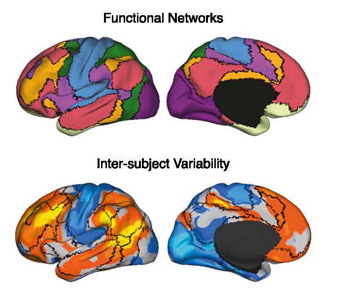 Hirnforschung: Wurzeln der Individualität - Spektrum der Wissenschaft