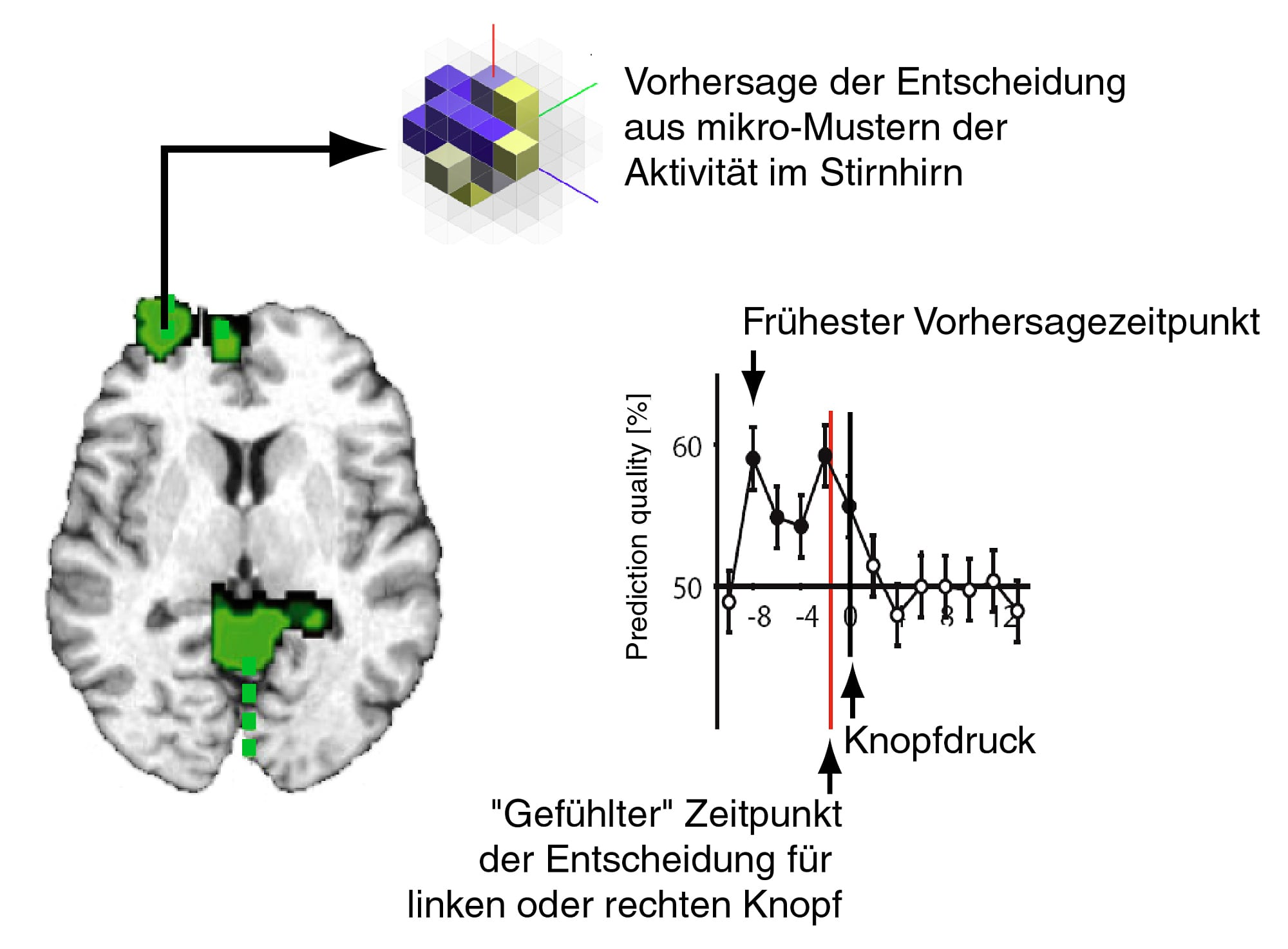 Hirnforschung: Mehr als tausend Worte - Spektrum der Wissenschaft