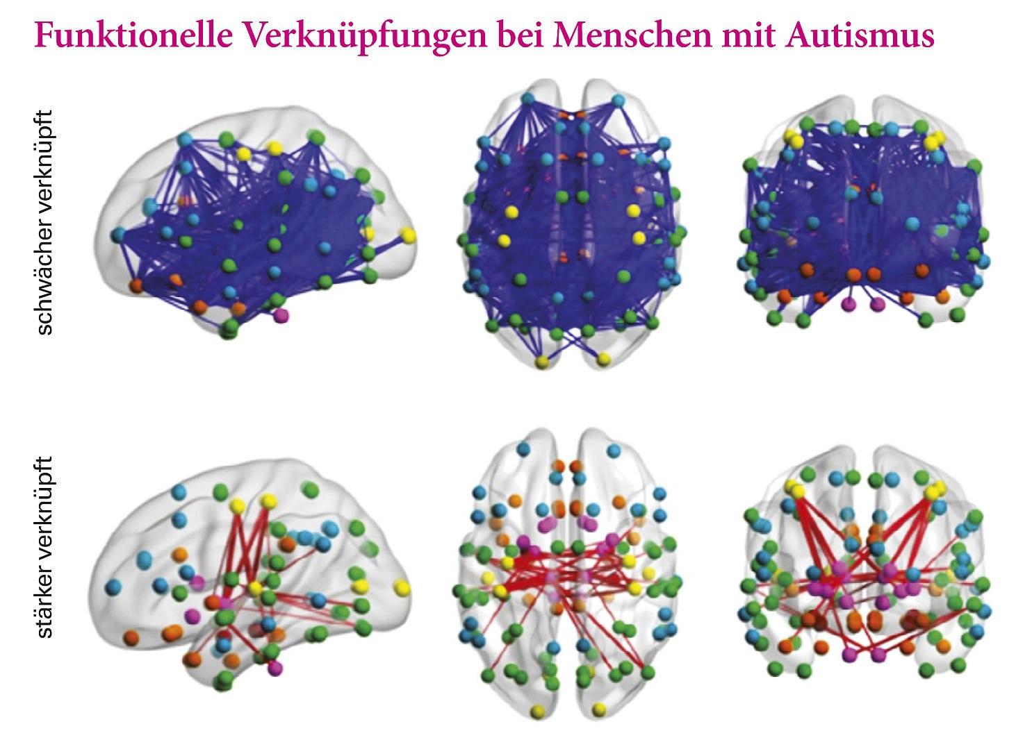 fruhkindlicher autismus symptome ursachen und therapien