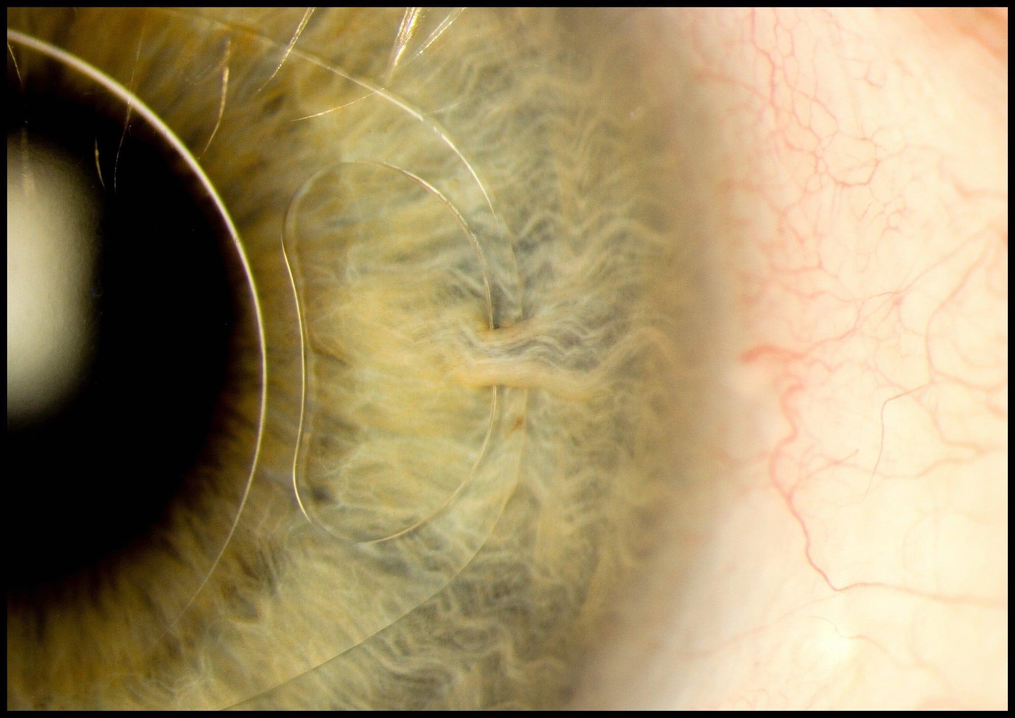 Iris clip lens in the eye