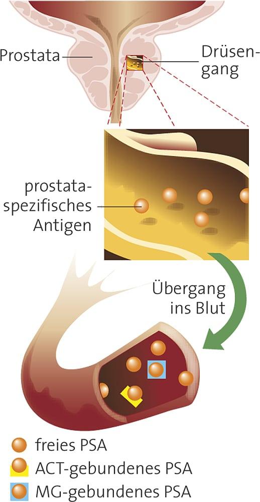 Medizin: Streit um die Prostatakrebs-Früherkennung - Spektrum der ...
