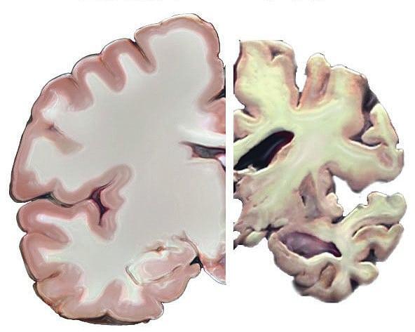 Beta Amyloid Plaques >> Demenz: Ist Alzheimer ansteckend? - Spektrum der Wissenschaft