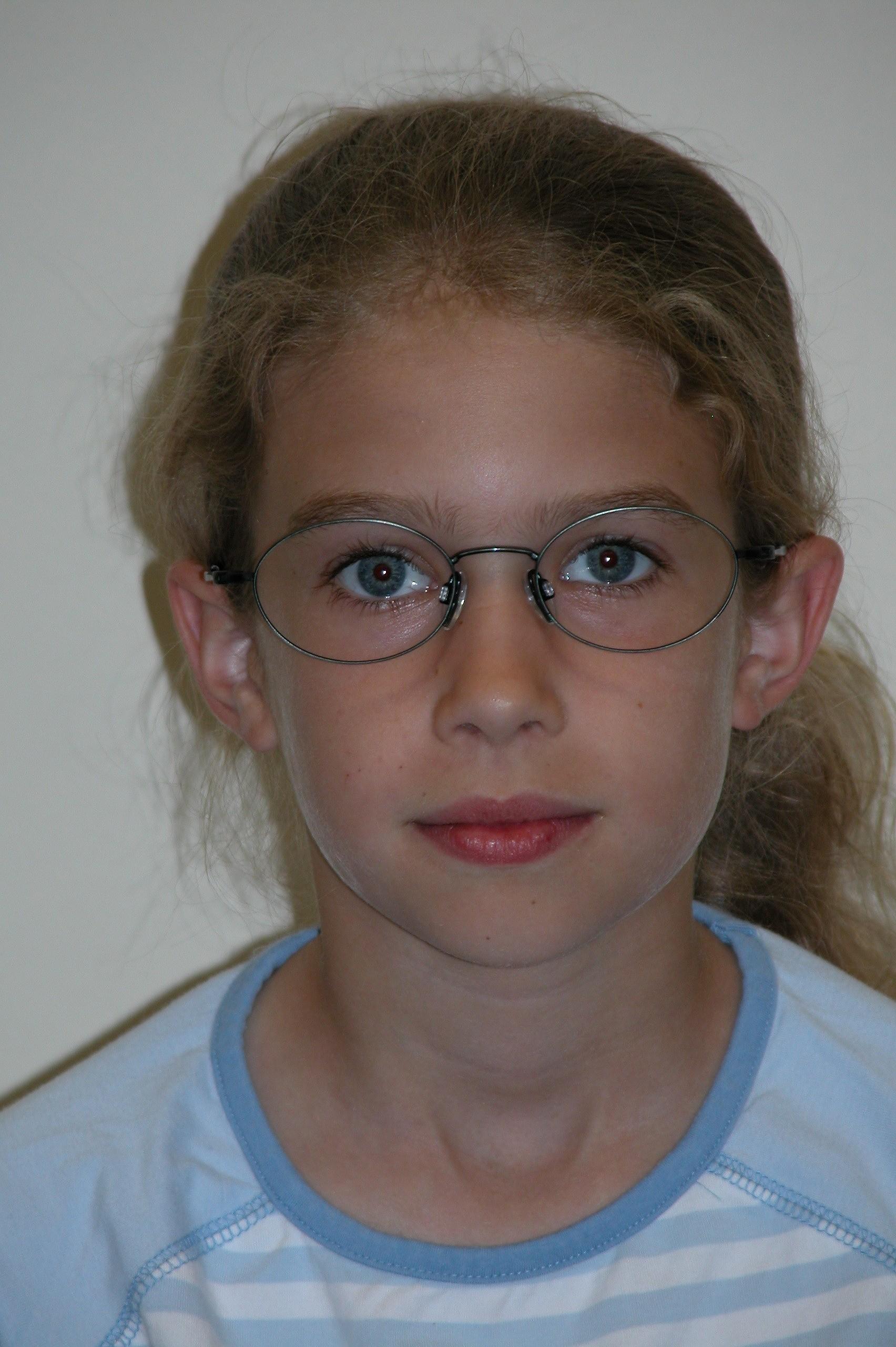 Ophthalmologie: Von wegen Brillenschlange - Spektrum der