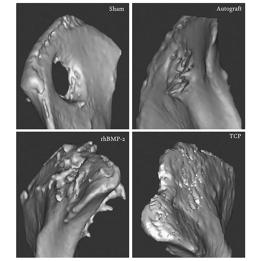 Medizin: Mikroporöse Keramikimplantate heilen Knochenbrüche besser ...