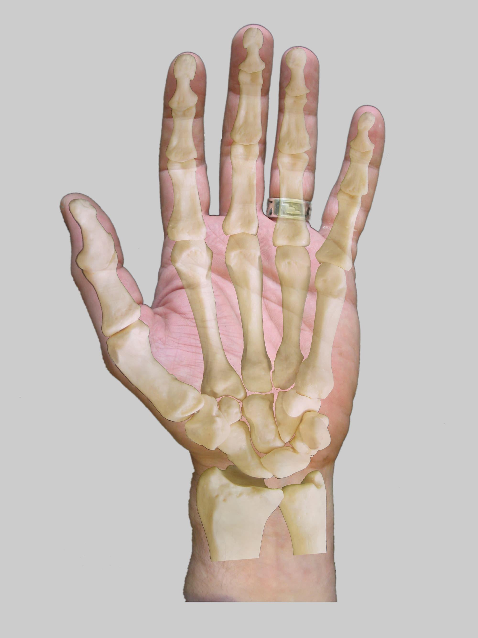 Handwurzelknochen, heiter - Spektrum der Wissenschaft