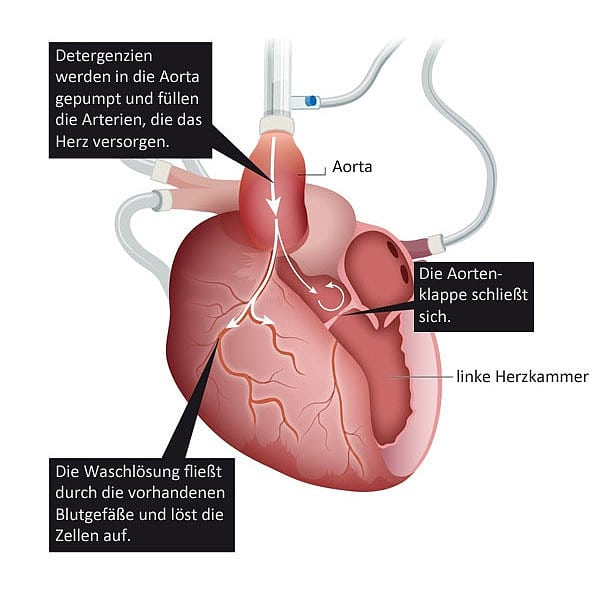 Regenerative Medizin: Bauanleitung für ein Herz - Spektrum der ...