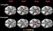 Gehirne Hetero- und Homosexueller