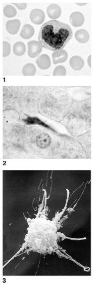 Makrophagen