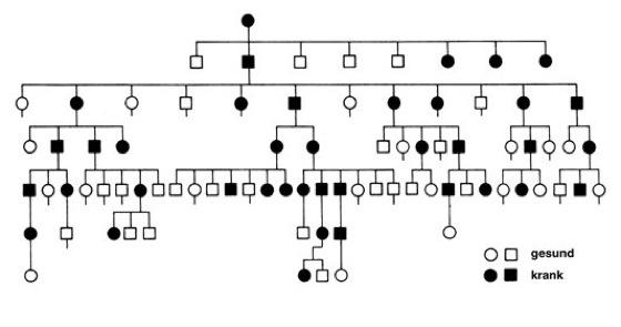 Brachydaktylie Brachydaktylie. Ursachen.