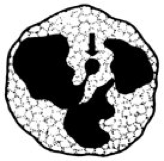 Drumstick - Lexikon der Biologie