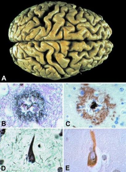 Alzheimer-Krankheit - Lexikon der Neurowissenschaft