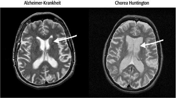 Bildgebung in der Neurowissenschaft - Lexikon der Neurowissenschaft